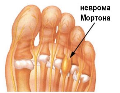 Невринома: симптомы, лечение, удаление, виды Неврогенная опухоль на шее сбоку
